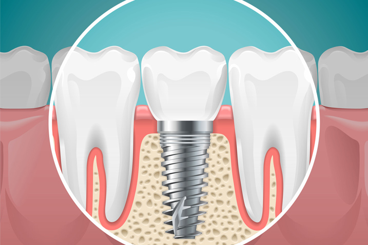 What is Dental Implant and Benefits