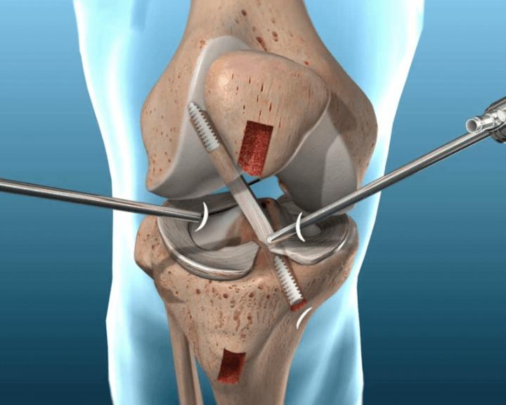 ACL tear surgery